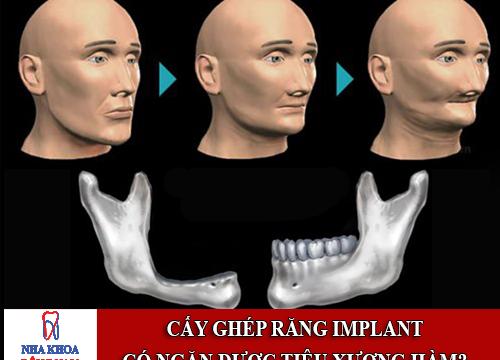 Cấy ghép răng implant có ngăn được sự tiêu xương hàm