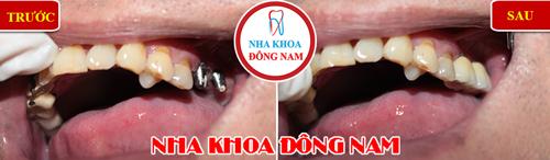 Cấy ghép răng Implant có ngăn được tiêu xương 11