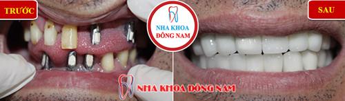 Cấy ghép răng Implant có ngăn được tiêu xương 7