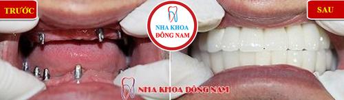 Cấy ghép răng Implant có ngăn được tiêu xương 8