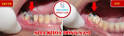 Cấy ghép răng Implant có ngăn được tiêu xương 9