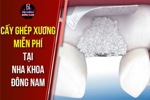 Điều kiện cấy ghép xương miễn phí tại nha khoa Đông Nam