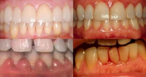 chăm sóc răng miệng đúng cách như thế nào