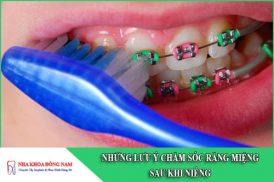 7 lưu ý chăm sóc răng miệng sau khi niềng