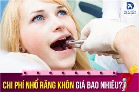 chi phí nhổ răng khôn giá bao nhiêu