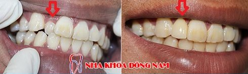 chiếc răng cửa bị lệch thì điều trị như thế nào -2