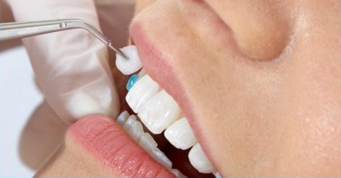 chiếc răng cửa bị lệch thì điều trị như thế nào -8