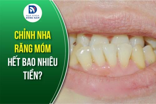chỉnh nha răng móm hết bao nhiêu tiền