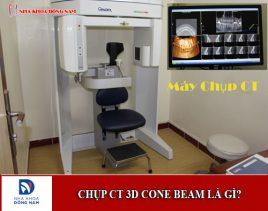 Chụp CT 3D Cone Beam là gì và có gây hại cho cơ thể không?
