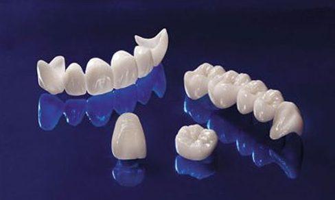 có nên làm răng toàn sứ hay không 1