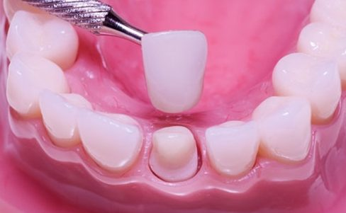 có nên làm răng toàn sứ hay không 5