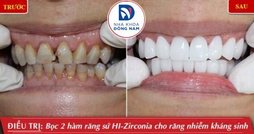 bọc sứ 2 hàm bằng răng toàn sứ