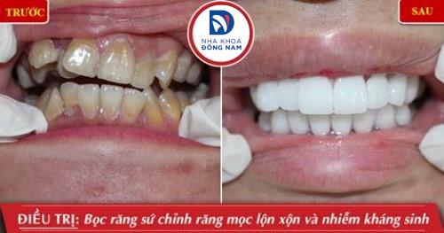 bọc sứ cho răng mọc lộn xộn và nhiễm kháng sinh