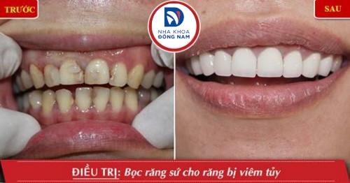 bọc sứ cho răng bị viêm tủy