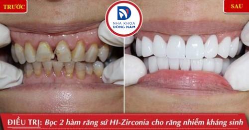 bọc sứ hi-zirconia cho răng nhiễm kháng sinh