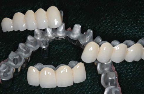 có nên trồng răng sứ kim loại không 1