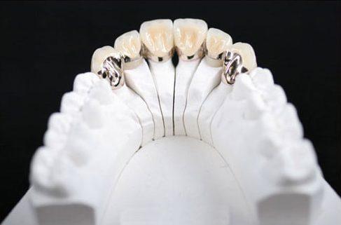 có nên trồng răng sứ kim loại không 2