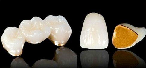 có nên trồng răng sứ kim loại không 3