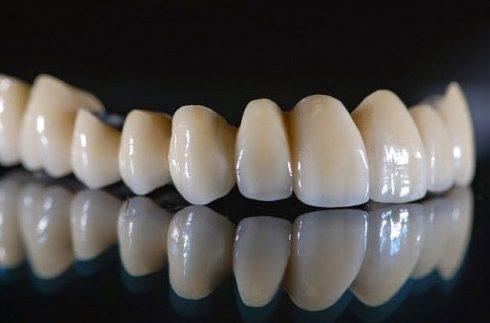 có nên trồng răng sứ kim loại không 4