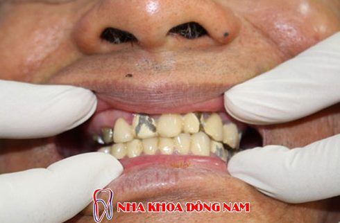 có nên trồng răng sứ kim loại không 5