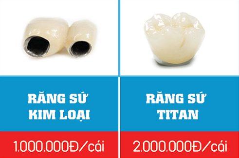 có nên trồng răng sứ kim loại không 6