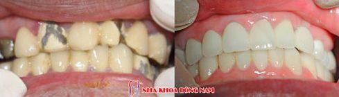 có nên trồng răng sứ kim loại không 7