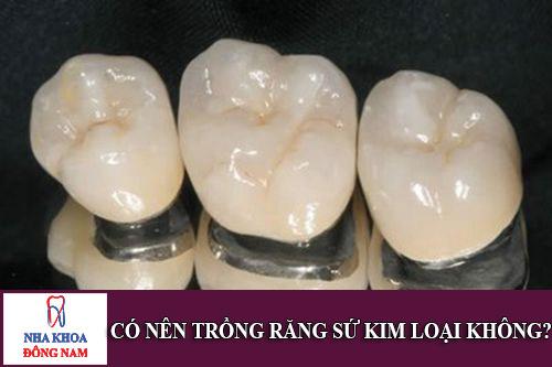 có nên trồng răng sứ kim loại không