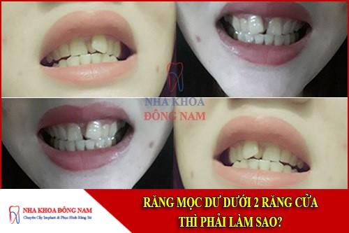 răng mọc dư dưới 2 răng của thì phải làm sao