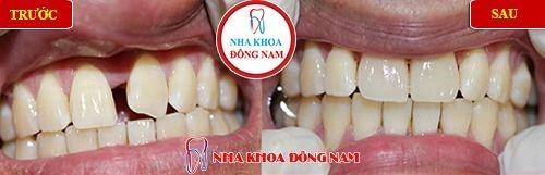 bọc sứ cho răng cửa