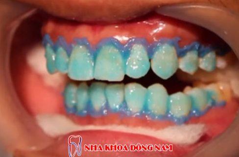 công nghệ tẩy trắng răng bằng đén zoom 3