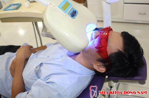 công nghệ tẩy trắng răng bằng đén zoom 4
