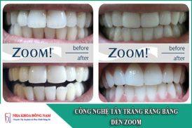 công nghệ tẩy trắng răng bằng đèn zoom