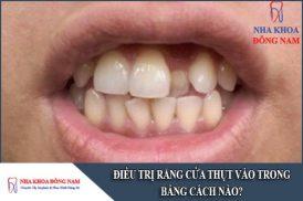 điều trị răng cửa thụt vào trong bằng cách nào