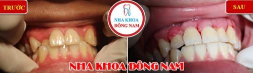 phẫu thuật chỉnh hình răng cửa thụt vào trong