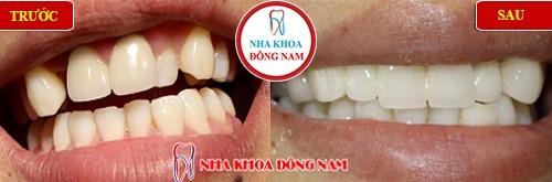 bọc sứ zirconia cho răng cửa thụt vào trong