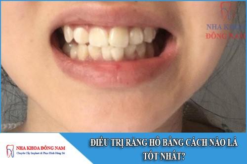 điều trị răng hô bằng cách nào là tốt nhất