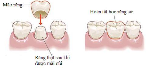 điều trị răng hô bằng cách nào là tốt nhất -4