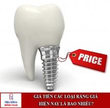 Bảng giá tiền trồng các loại răng giả tốt nhất hiện nay