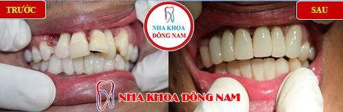 bọc răng sứ thẩm mỹ cho răng cửa bị vẩu