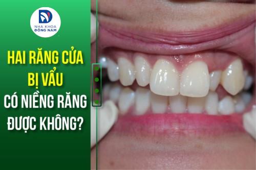 hai răng cửa bị vẩu có niềng răng được không