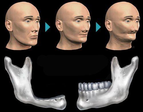 mất răng gây lão hóa