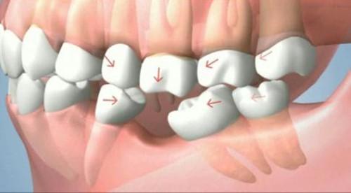 hàm răng bị xô lệch do mất răng