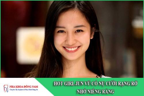 hot girl jun vũ có nụ cười rạng rỡ nhờ niềng răng