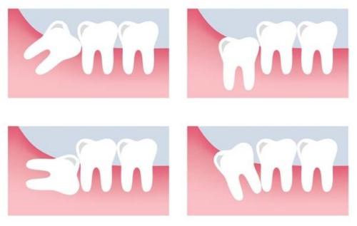khi nào nên nhổ răng khôn số 8