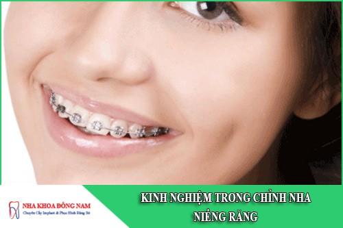 kinh nghiệm trong chỉnh nha niềng răng