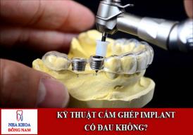 Kỹ Thuật Cắm Ghép Implant Có Đau Không?