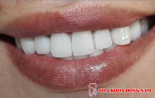 làm răng khểnh tại nha khoa đông nam -5