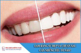 Làm răng sứ ĐẸP và chuẩn xác cần những yếu tố nào?