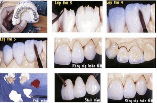 làm răng sứ như thế nào là đẹp và chuẩn xác -12