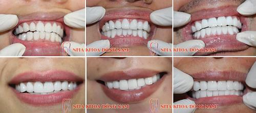 làm răng sứ như thế nào là đẹp và chuẩn xác -13